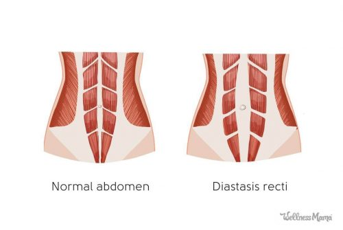 Quelle diastase abdominale?